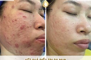 Before And After Acne Skin Treatment And Improving Pitted Scar At Spa 10
