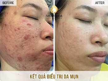 Before And After Acne Skin Treatment And Improving Pitted Scar At Spa 1