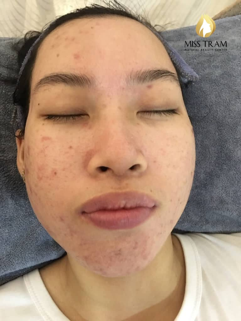 Before And After Acne Skin Treatment And Improving Pitted Scar At Spa 5