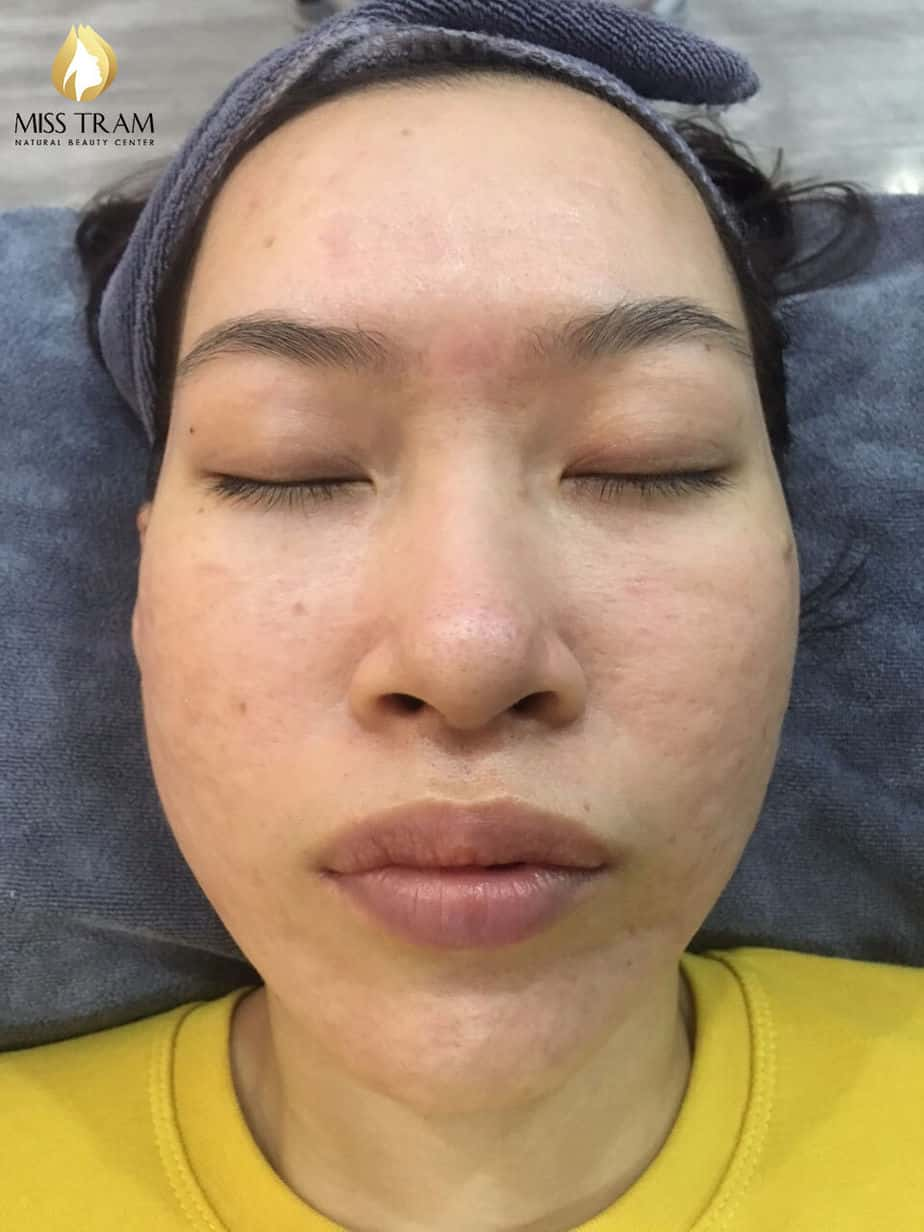 Before And After Acne Skin Treatment And Improving Pitted Scar At Spa 7
