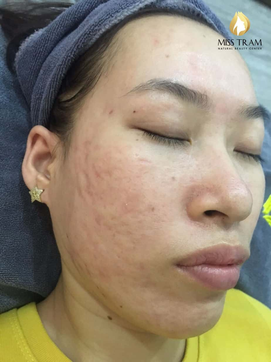 Before And After Acne Skin Treatment And Improving Pitted Scar At Spa 6