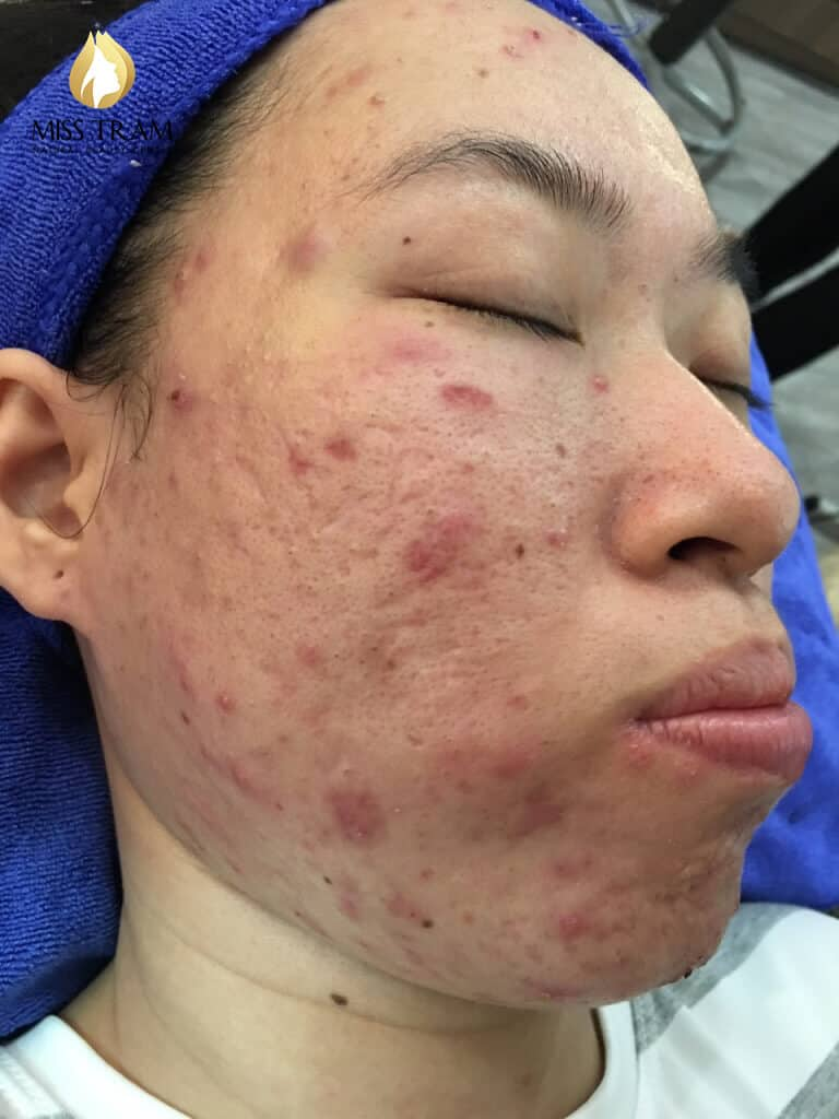 Before And After Acne Skin Treatment And Improving Pitted Scar At Spa 2