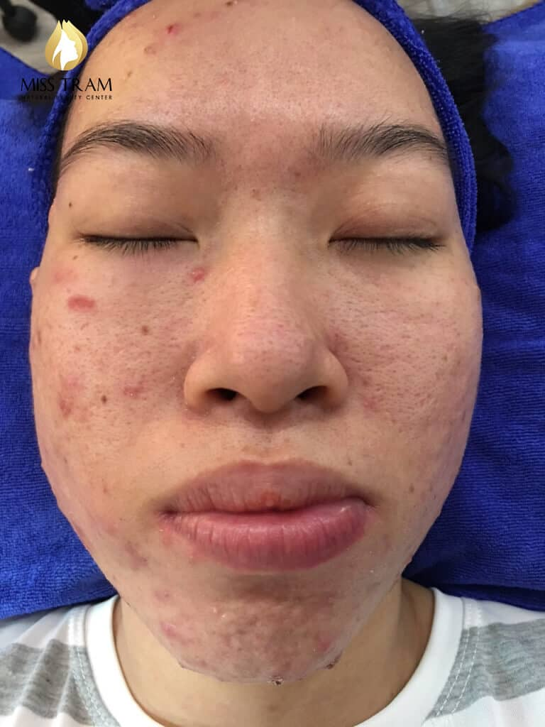 Before And After Acne Skin Treatment And Improving Pitted Scar At Spa 4