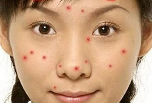 Acne Locations Warning Your Health Condition 1