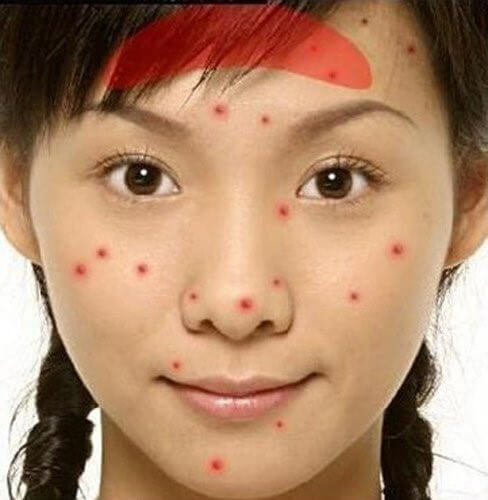 Decode the location of acne on your body
