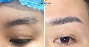 Trước Và Sau Kết Quả Xử Lý - Tạo Lại Dáng Chân Mày Cho Nữ 39