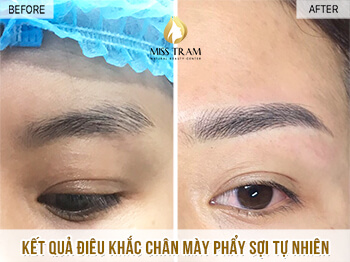 Before and After Treatment Results - Reconstructing Eyebrow Shapes for Women 1