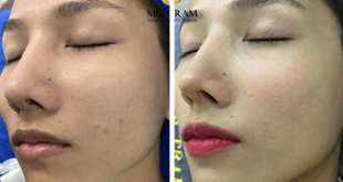 Before and After Improving Brightness And Skin Beauty At Spa 22