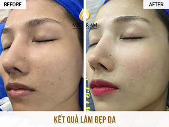 Before and After Improving Brightness And Skin Beauty at Spa 1
