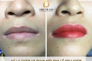 Trước Và Sau Kết Quả Xử Lý Thâm Và Phun Môi Collagen 7