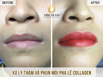 Before and After Results of Collagen Treatment and Lip Spray 1