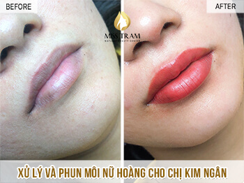 Before And After Treatment - Spraying Her Super Beautiful Queen Lips 1