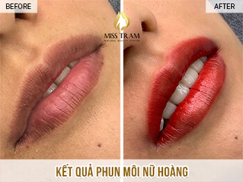 Before and After Results of the Beauty Queen Lip Spray 1