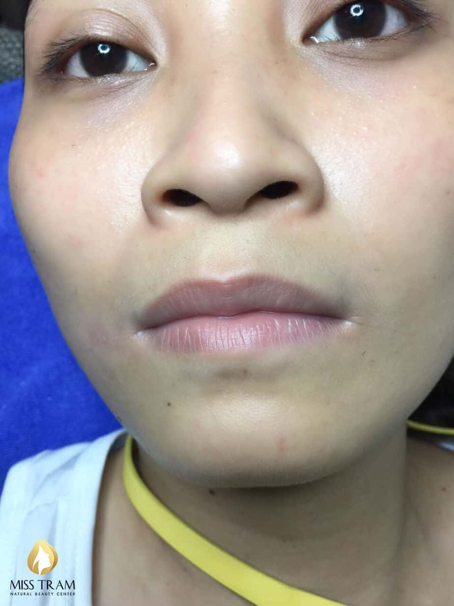 Before and After Collagen Treatment And Lip Spray 2