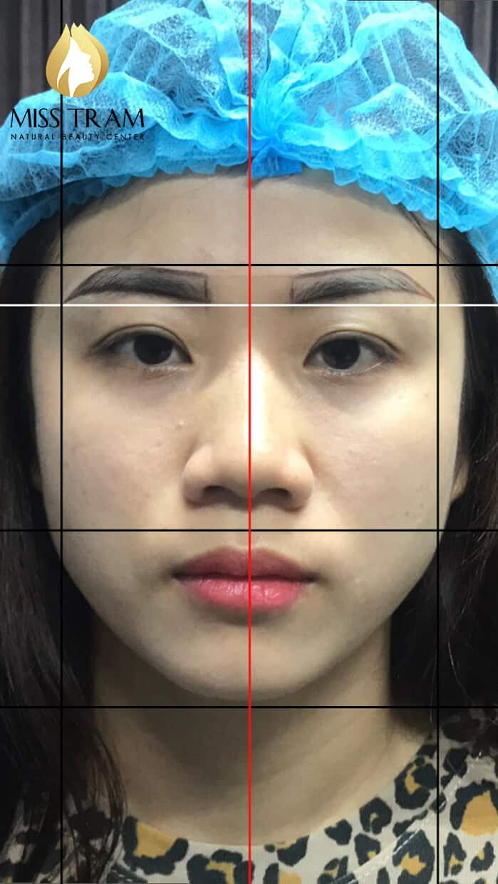 Before and After Treatment Results - Reconstructing Eyebrow Shapes for Women 3