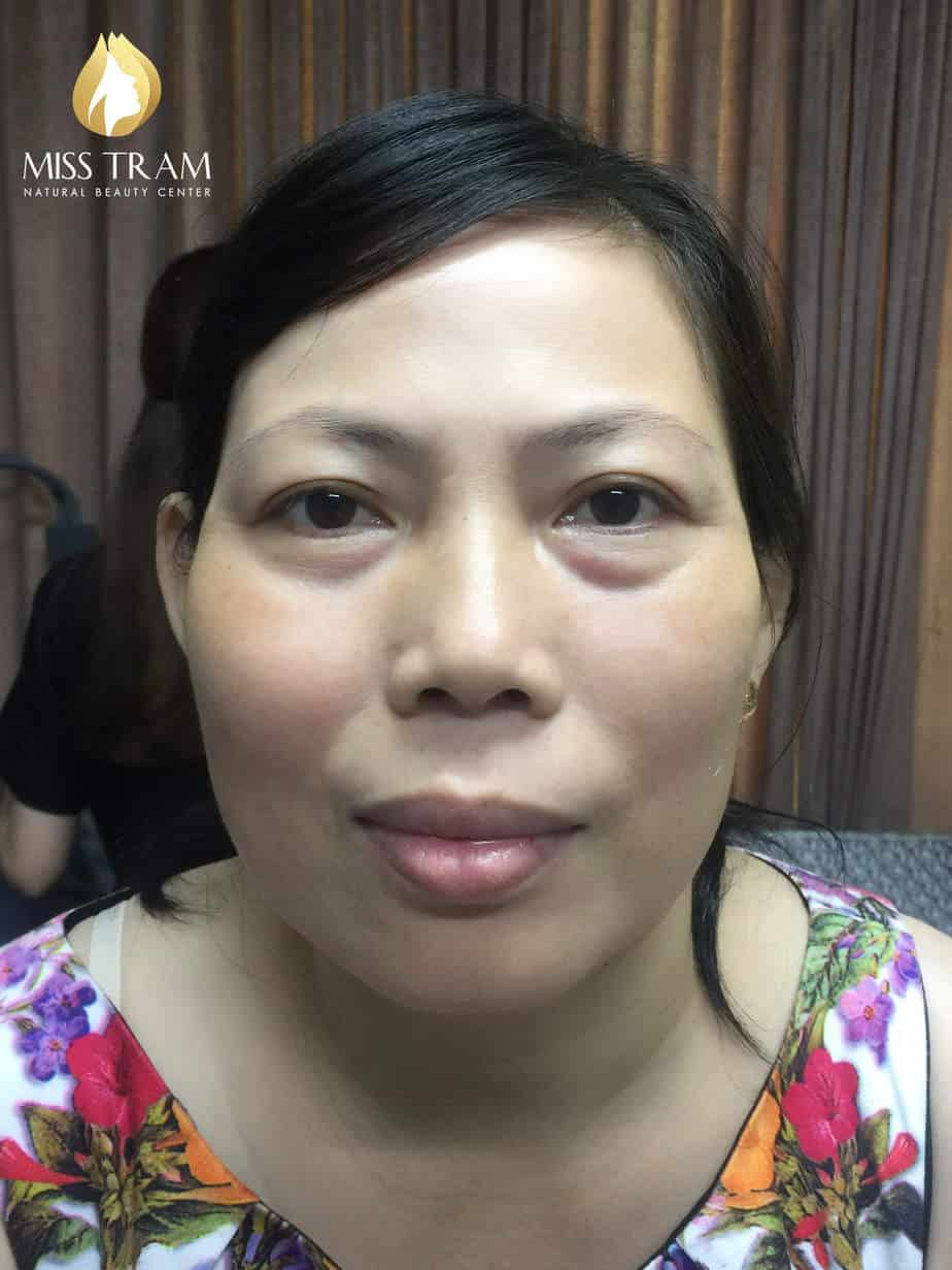 Before And After Sculpting Eyebrows Correcting Irregular Eyebrow 2