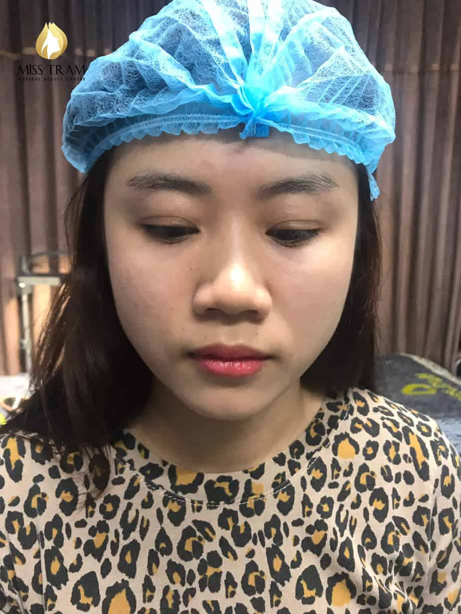 Before and After Treatment Results - Reconstructing Eyebrow Shapes for Women 2