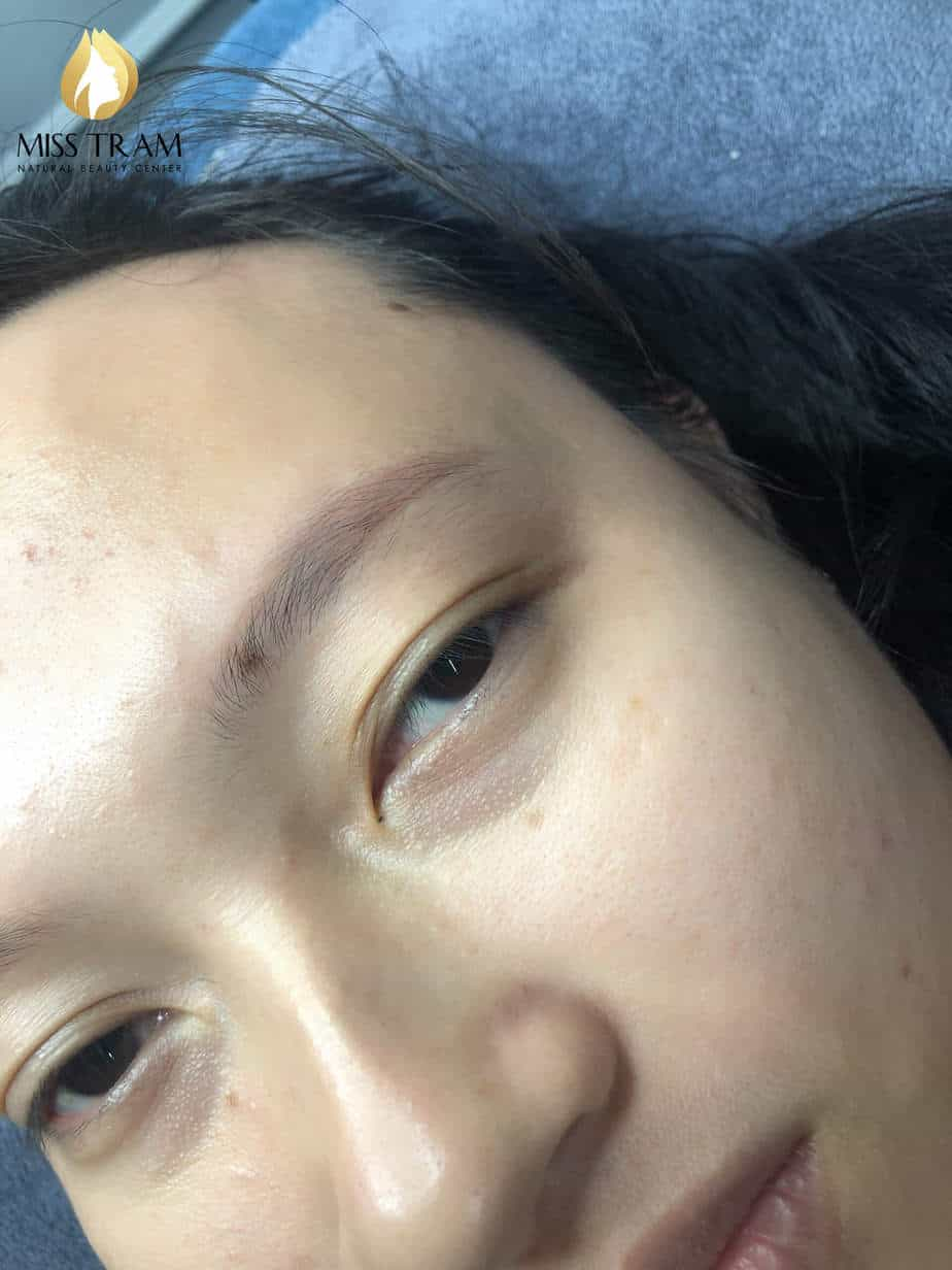 Before And After Treating And Sculpting Eyebrows Queen 2