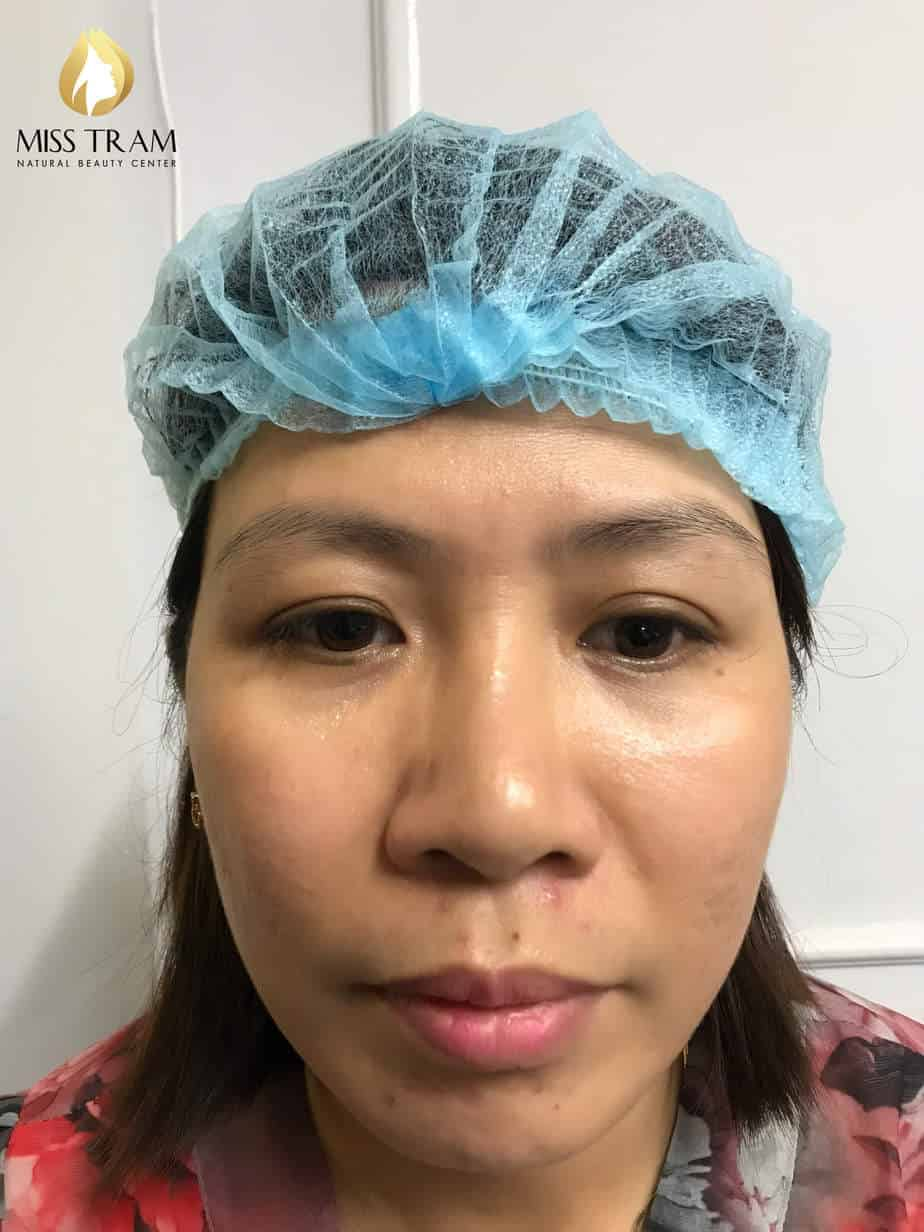 Before and After Results Sculpting Beauty Queen Brow For Women 2