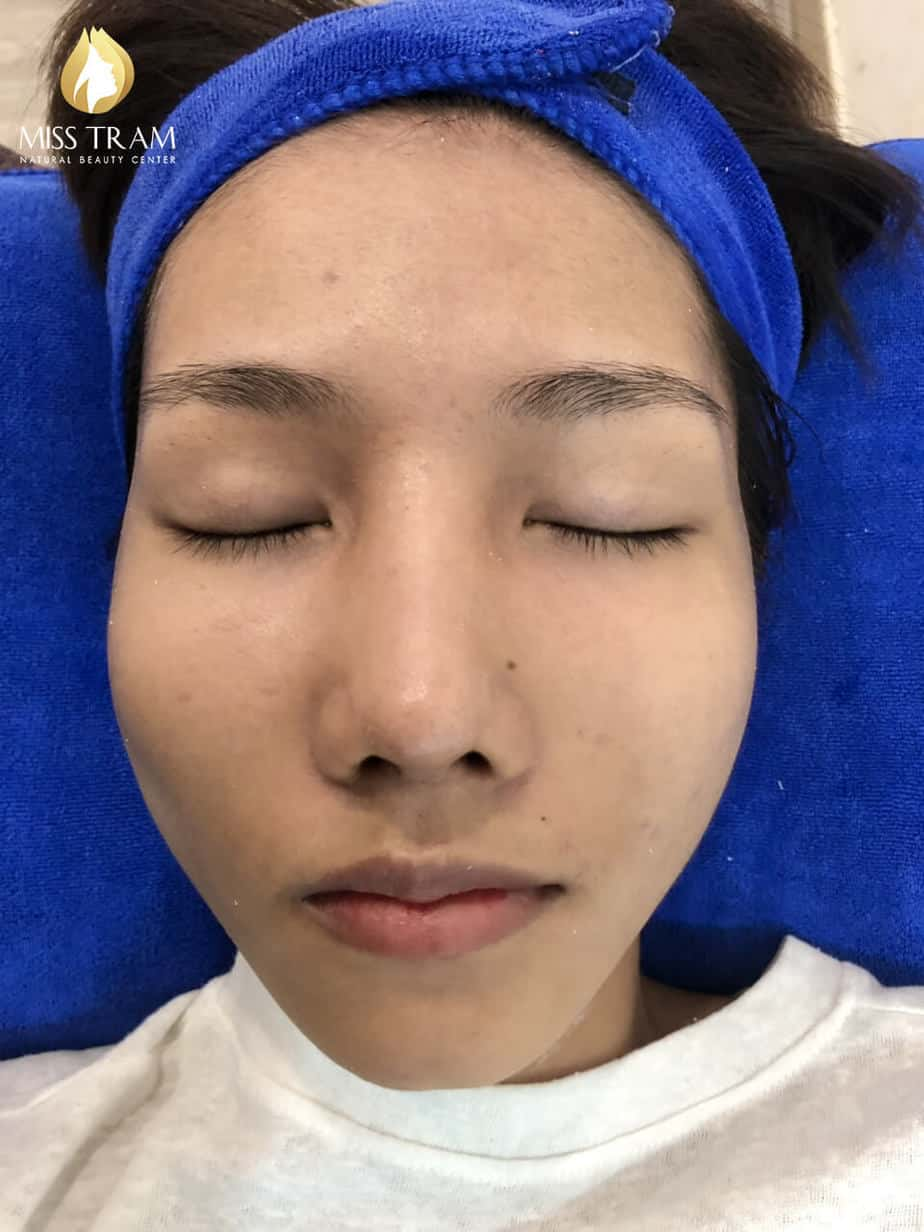 Before and After Improving Brightness And Skin Beauty at Spa 3