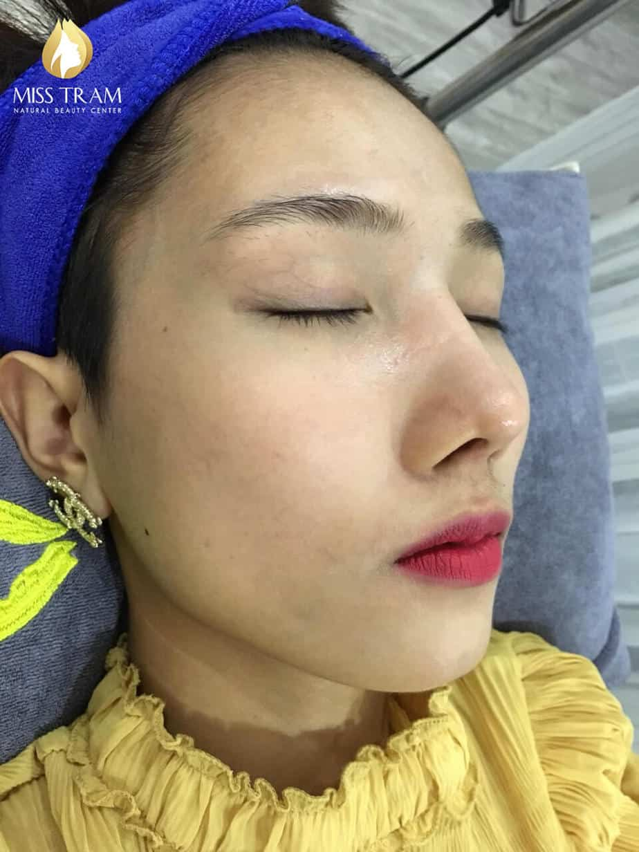 Before and After Improving Brightness And Skin Beauty at Spa 5