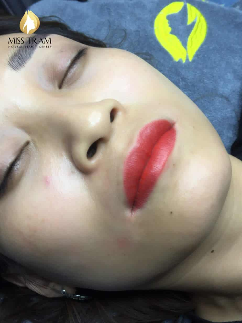Before and After Collagen Treatment and Lip Spray 3