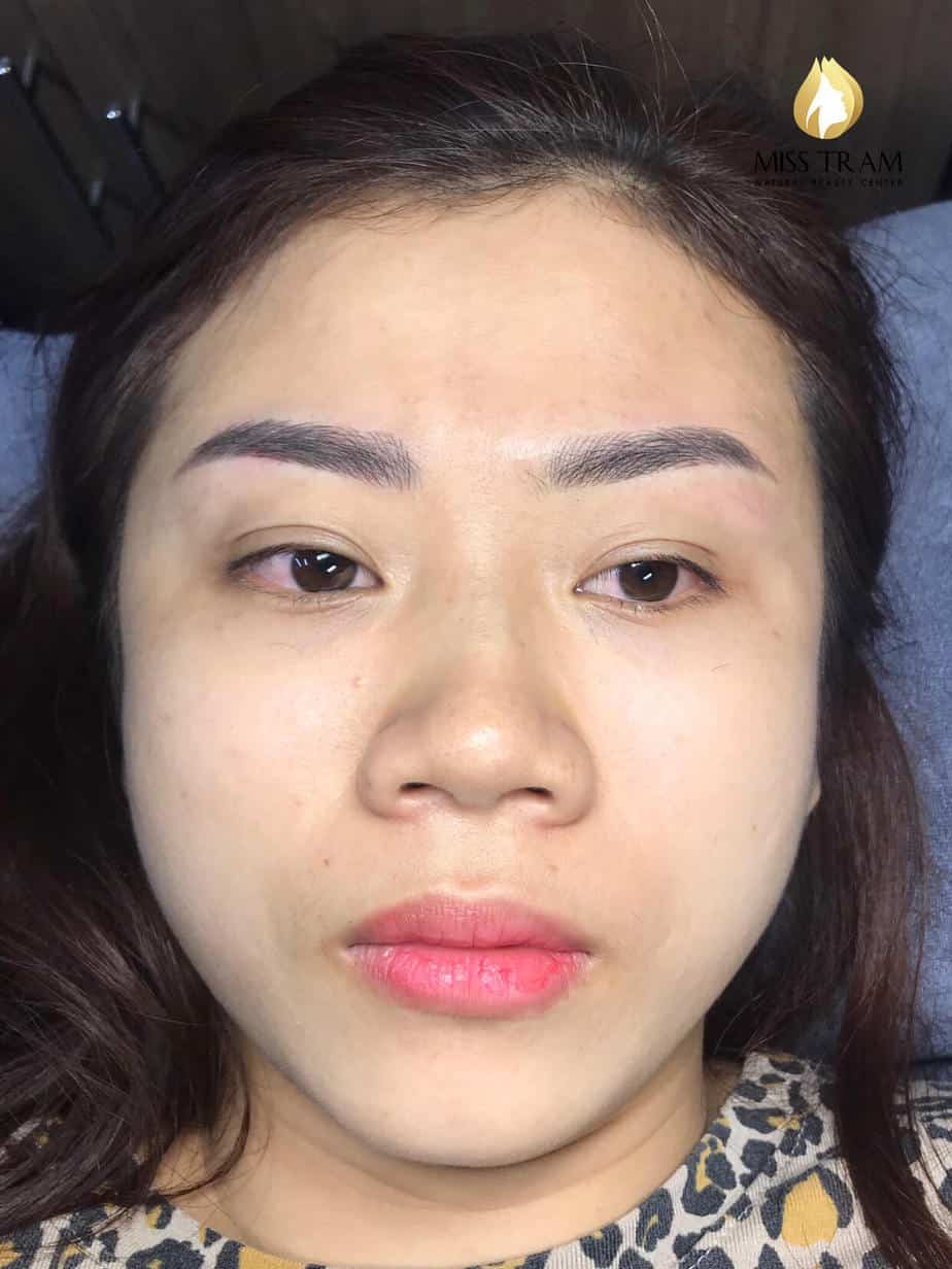 Before and After Treatment Results - Reconstructing Eyebrow Shapes for Women 5