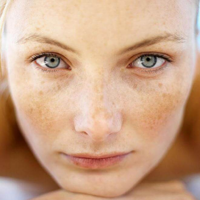 Tips for Preventing Hyperpigmentation on Summer Day 2