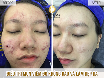 Before and After Treatment of Acne Headless Acne and Skin Beauty 1