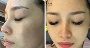 Before and After Chrome Skin Treatment for Women. 17