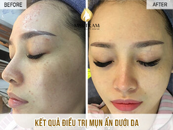 Before and After Chrome Skin Treatment for Women 1