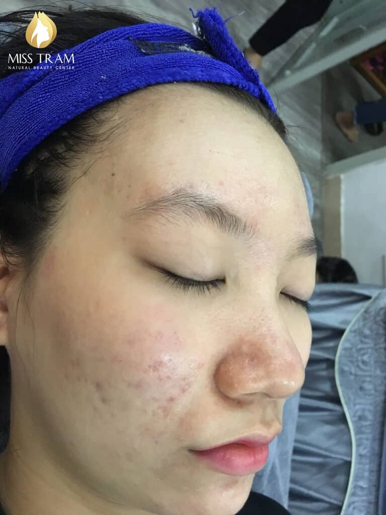 Before and After Treatment of Acne Headless Acne and Skin Beauty 5
