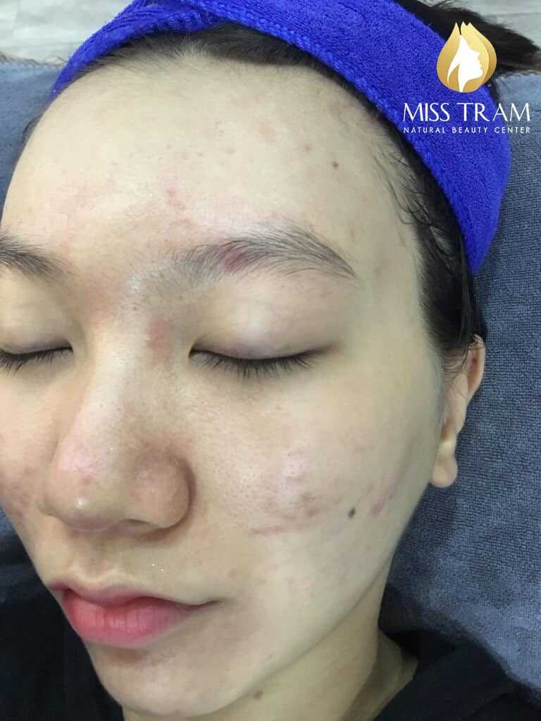 Before and After Treatment of Acne Headless Acne and Skin Beauty 6