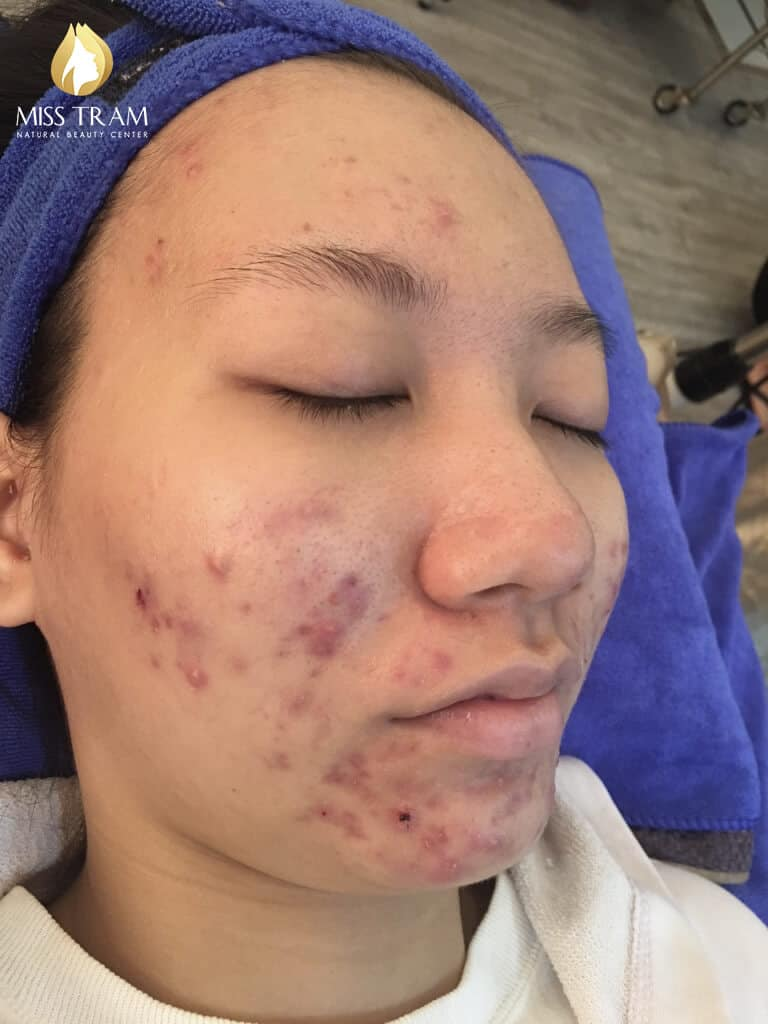 Before and After Treatment of Acne Headless Acne and Skin Beauty 2