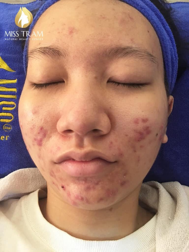 Before and After Treatment of Acne Headless Acne and Skin Beauty 4