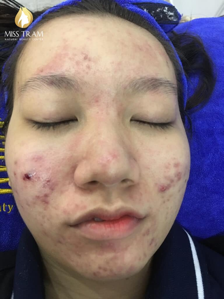 Before and After Treatment of Acne Headless Acne and Skin Beauty 3