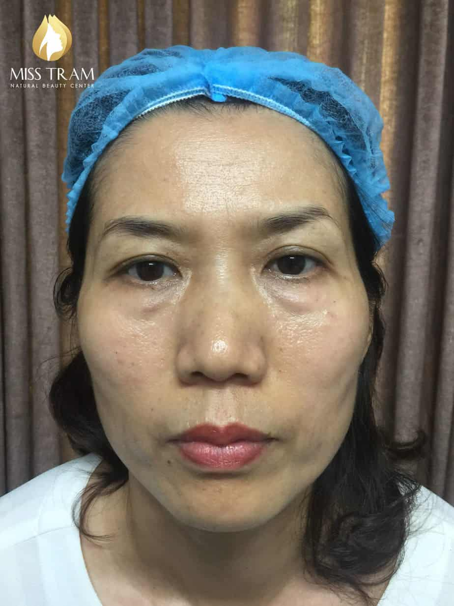 Before and After Technology Sculpting Queen Super Beautiful 2