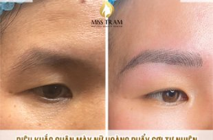 Before And After Sculpting Queen Eyebrow Scraping Women 1