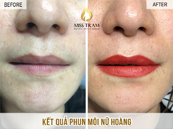 Before And After Treating Lemongrass And Lips Beauty Queen 1