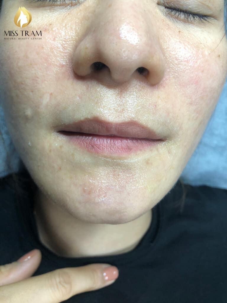 Before And After Beauty Treatment And Beauty Queen Spray 2