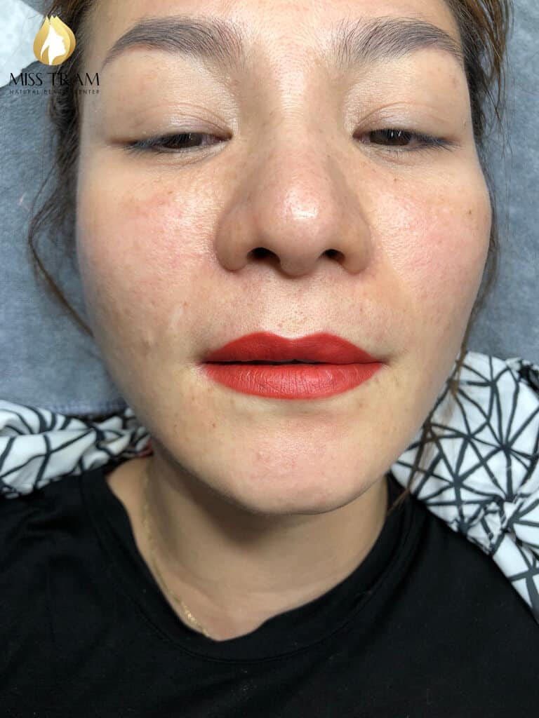 Before And After Treating Lemongrass And Spraying Lips Beauty Queen 3