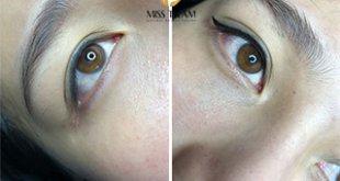 Trước Và Sau Khi Phun Mí Mắt Đuôi Cá Trẻ Trung Cho Nữ 32