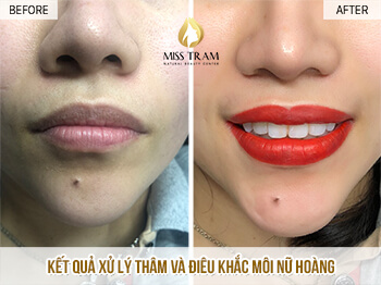 Before And After Deep Treatment - Sculpting Queen's Lips For Women 1