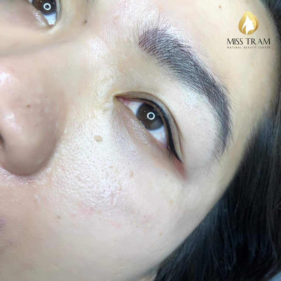 """Before And After Spraying """"Impressive"""" Eyelids At Spa 4"""