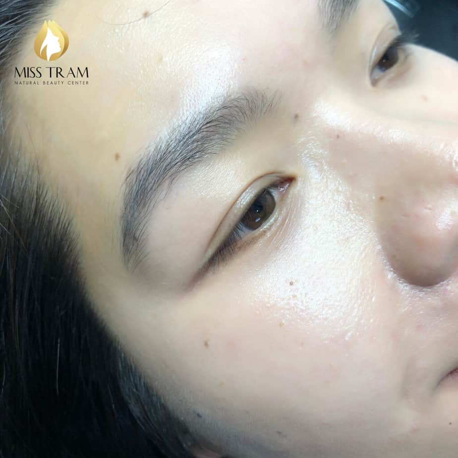 """Before And After Spraying """"Impressive"""" Eyelids At Spa 2"""