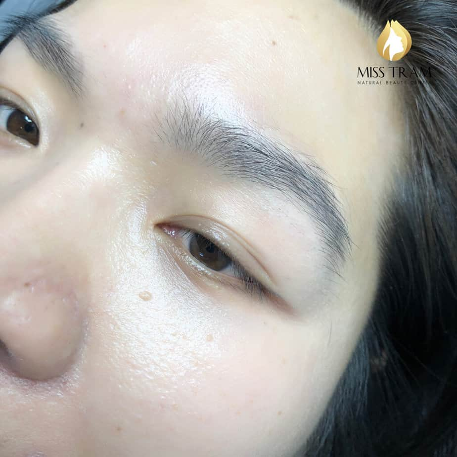 """Before And After Spraying """"Impressive"""" Eyelids At Spa 3"""