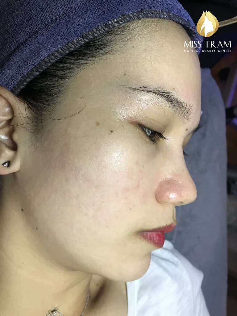 Before and After Using Acne Treatment Technology and Brightening Skin 5