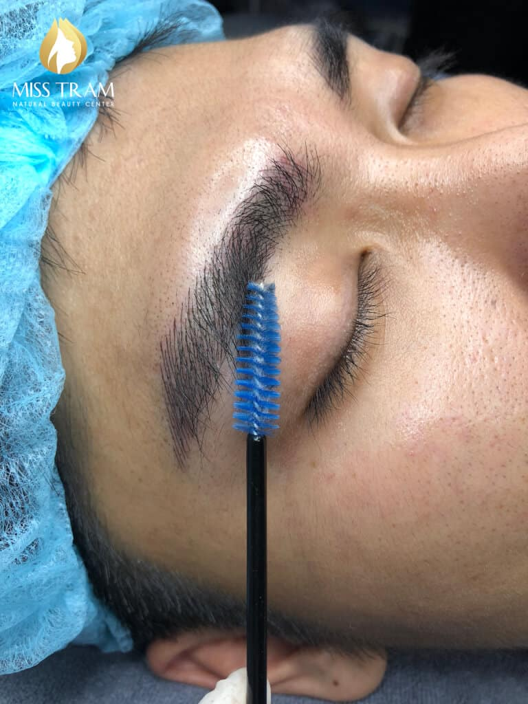 Before And After Sculpting Male Beauty Brow 6