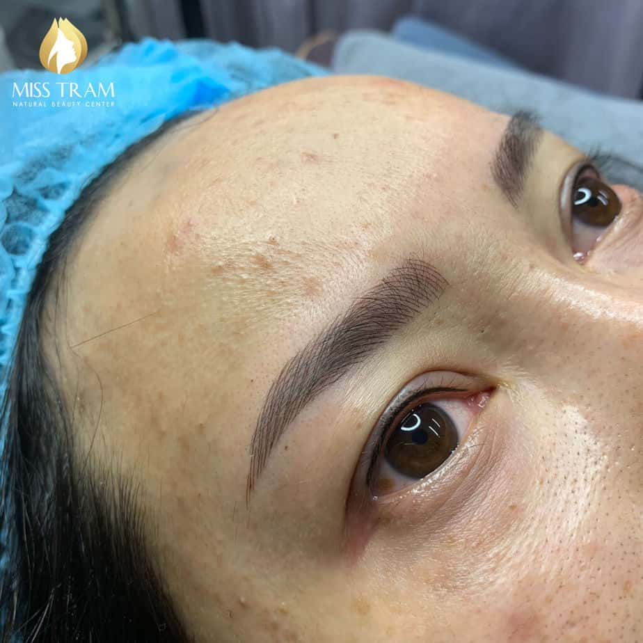 Before And After Sculpting You Communicate Naturally Beautiful Fiber Overcoming Short Brow 4