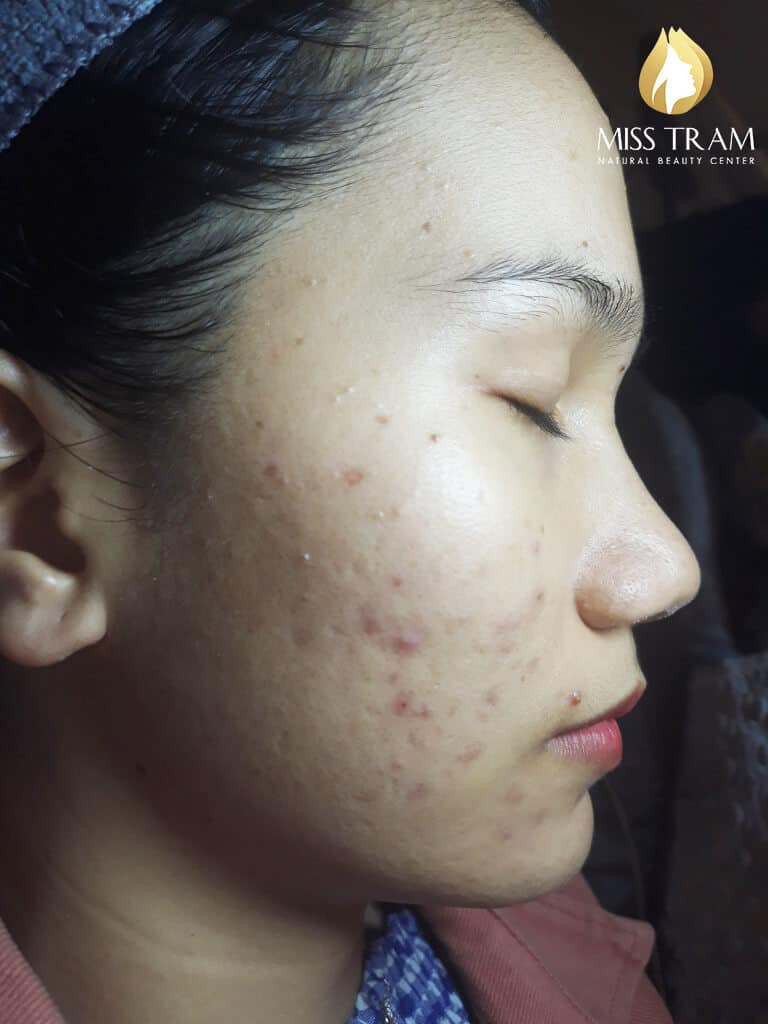 Before and After Using Acne Treatment Technology and Brightening Skin 2